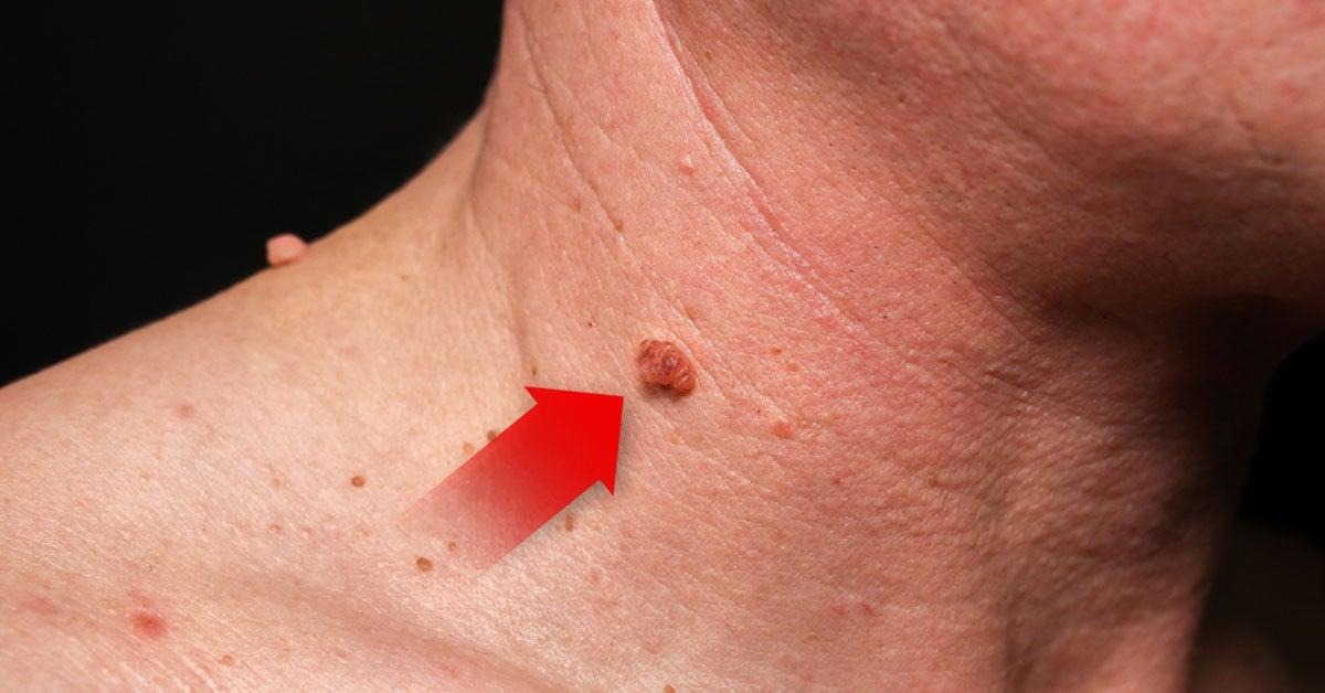 virus de papiloma humano provoca verrugas)