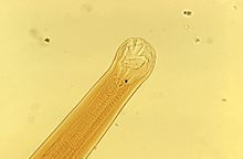 enterobius vermicularis monoxeno