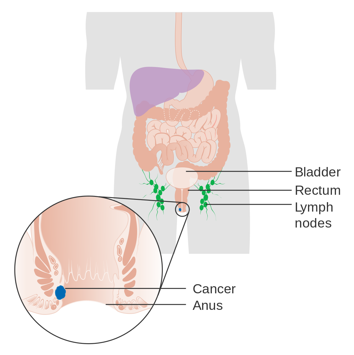 simptome cancer benign