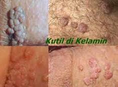 KETUAT - Definiția și sinonimele ketuat în dicționarul Malaeză