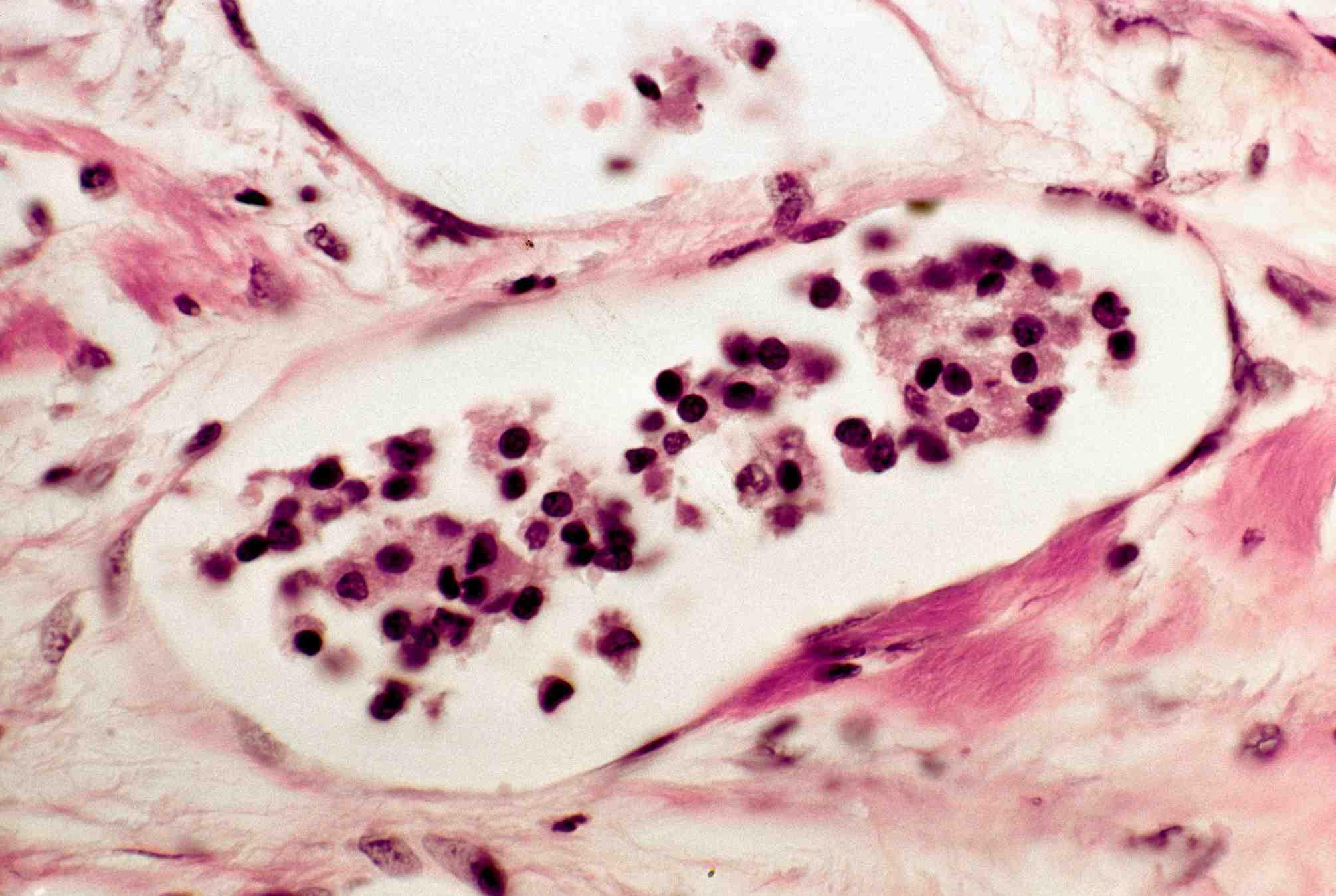 papillary thyroid cancer vascular invasion