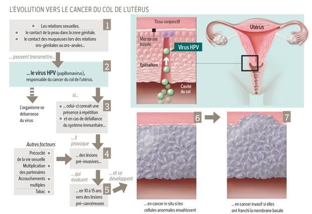 Navele varicoase la nivelul colului uterin