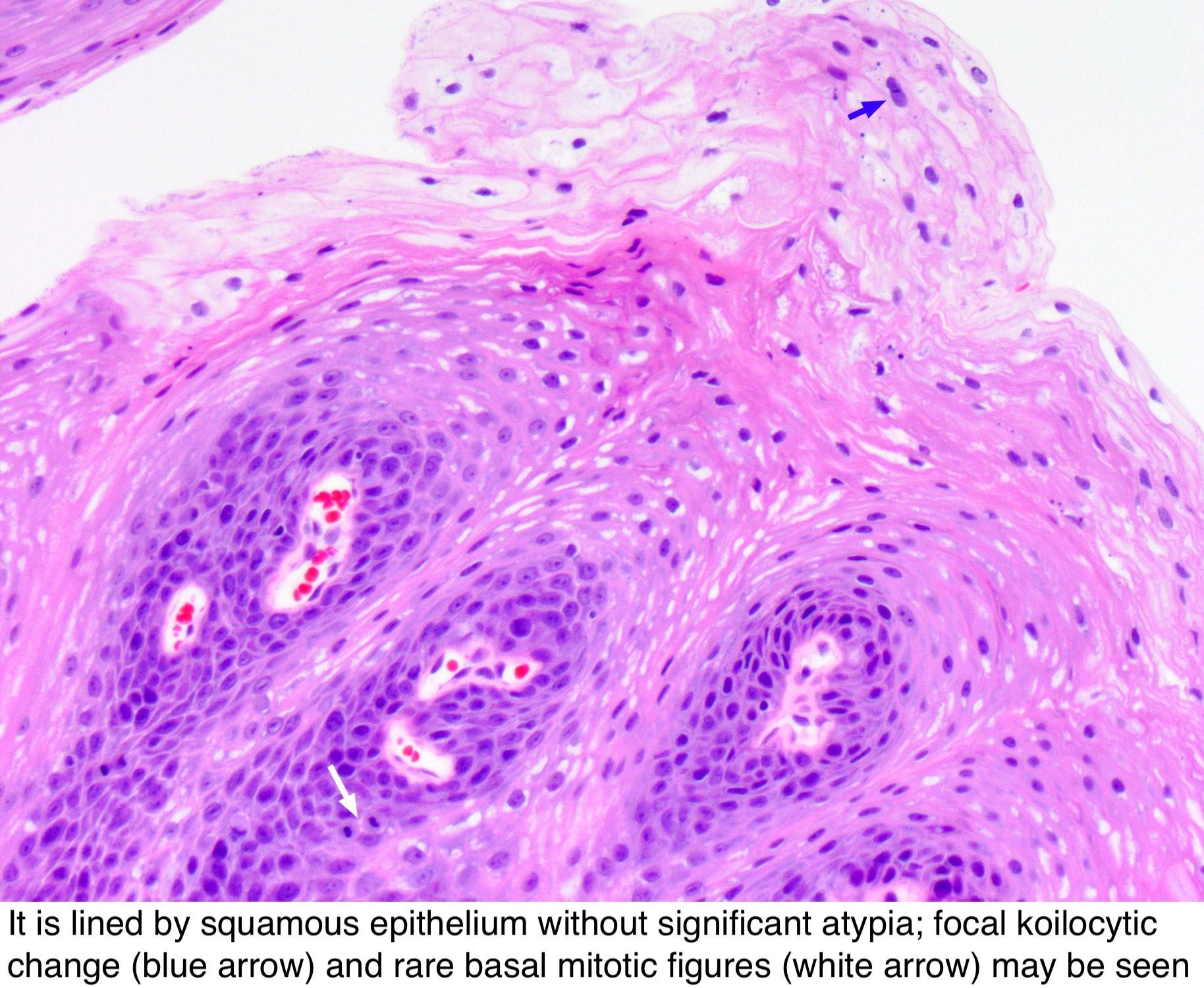 sinonasal papilloma cylindrical cell type)