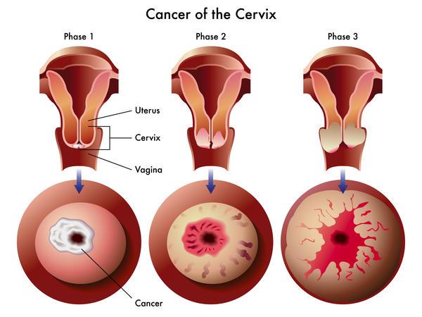 genital warts and cervical cancer)