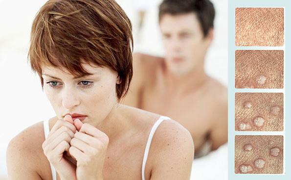 genital warts and pregnancy uk
