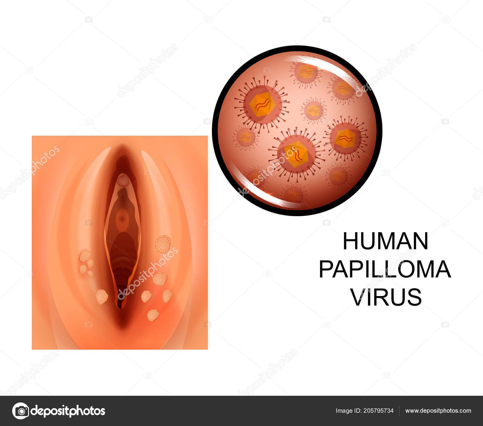 herpes papilloma virus