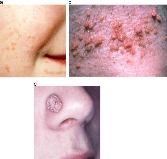 hpv affecting skin