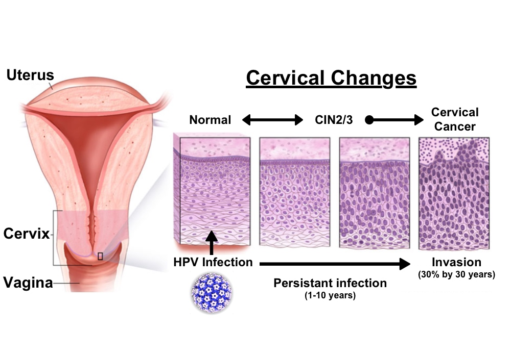 hpv cancer cells cervix