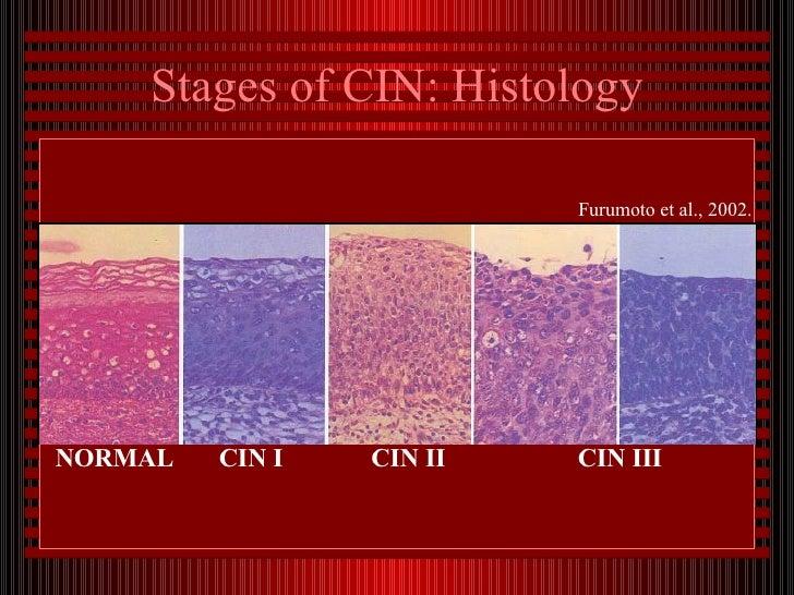 hpv cervical cancer stages