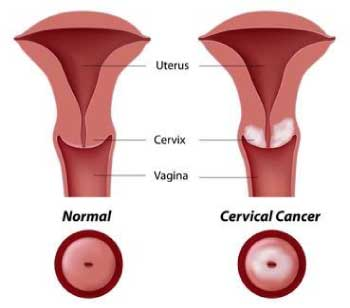 hpv cervice sintomi)