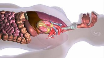 hpv esophagus symptoms