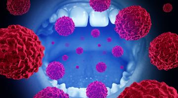 hpv oropharyngeal cancer screening)