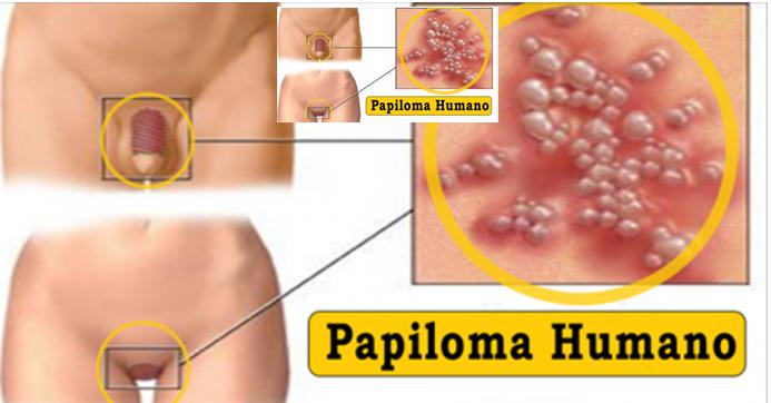 hpv papilomavirus humano sintomas
