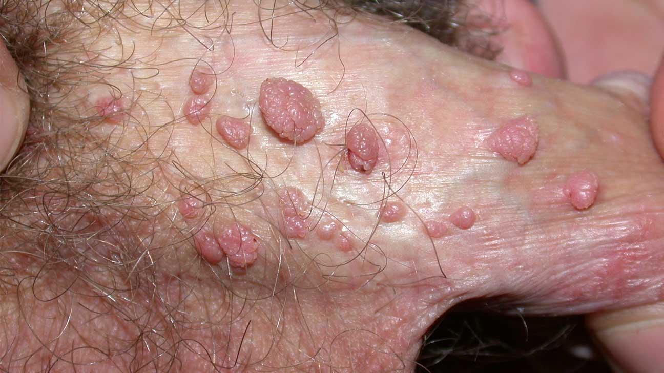 urothelial papilloma histopathology colorectal cancer gene mutation