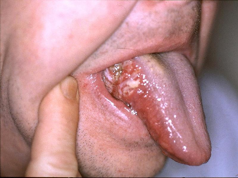 Cancerul de gat