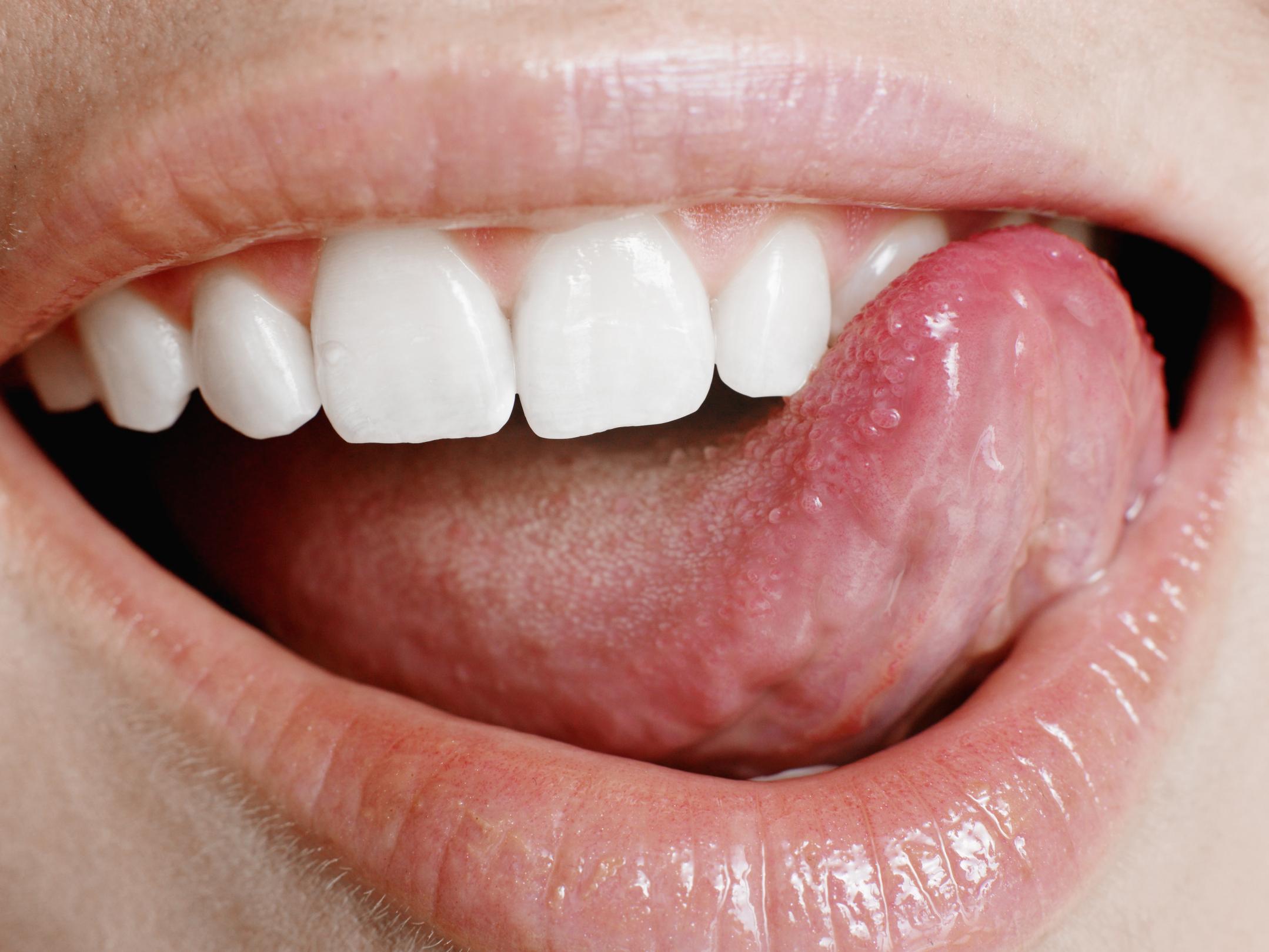 hpv tongue tag