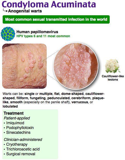 parasitos oxiuros en ninos cancer epithelioid sarcoma