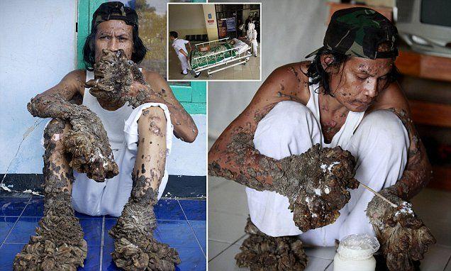 hpv tree disease