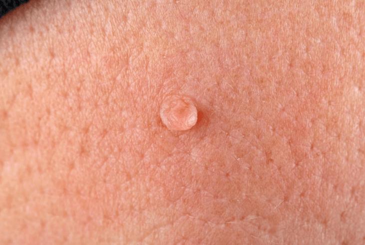 hpv verruga genital tratamento
