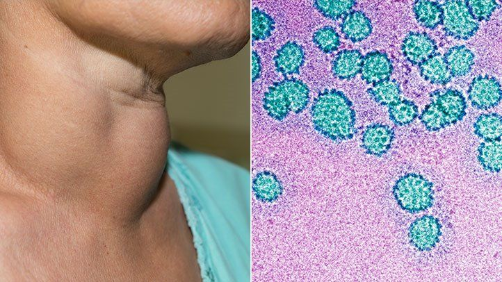 hpv virus and neck cancer