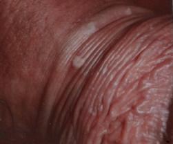 hpv virus uomo sintomi