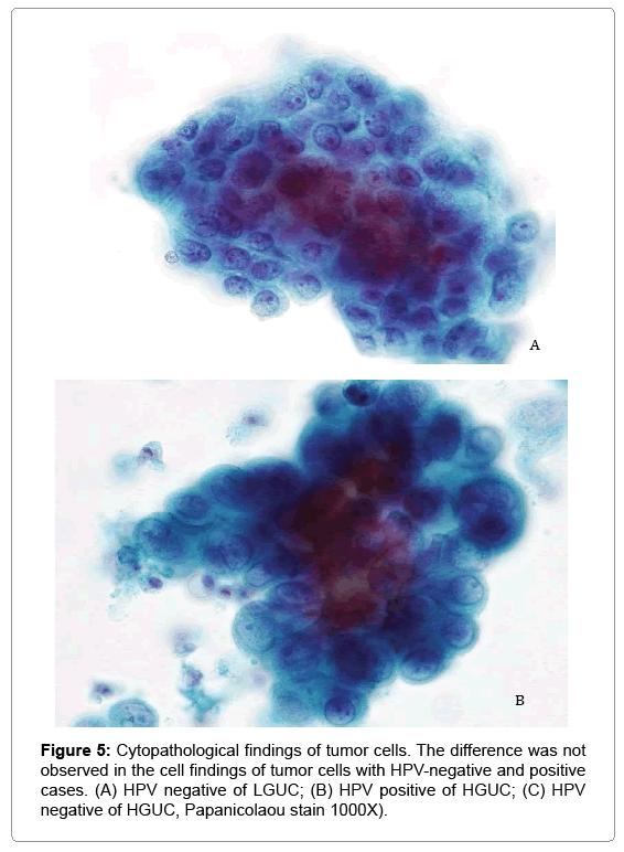 human papillomavirus infection bladder