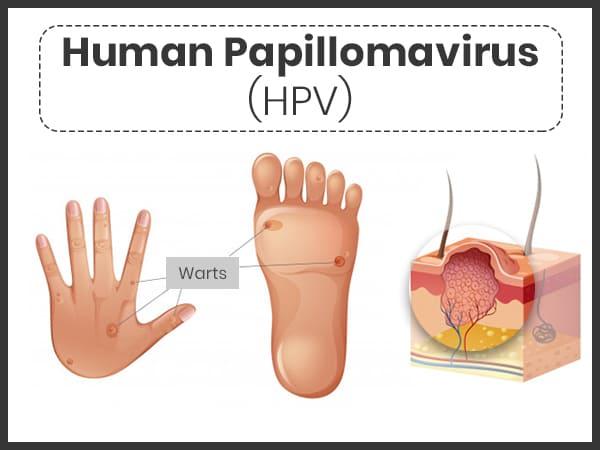 human papillomavirus infection diagnosis)