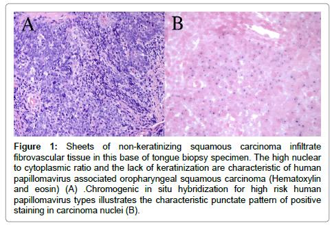 human papillomavirus squamous cell carcinoma cervix