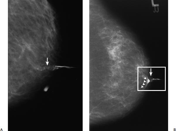 intraductal papilloma ductogram diagnostico de enterobiasis