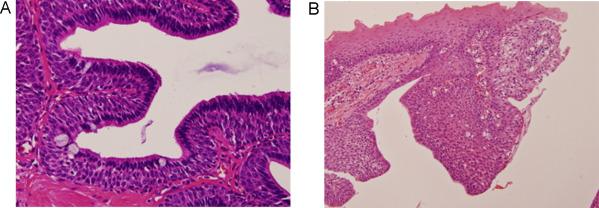 intraductal papilloma of salivary glands