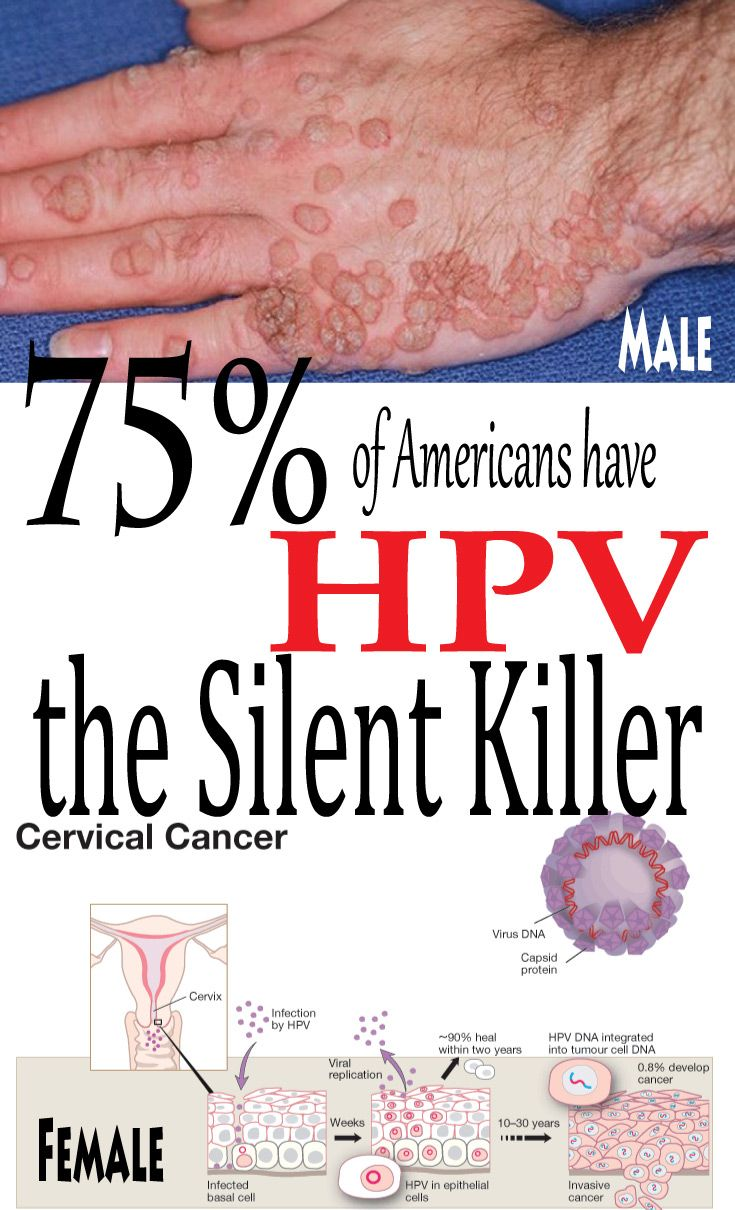 is hpv cervical cancer a std