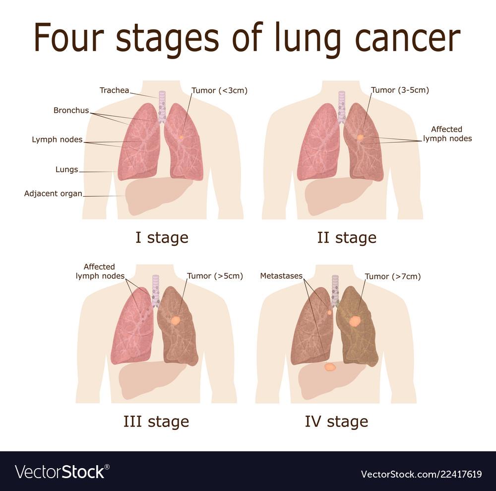 metastatic cancer fourth stage papillomavirus vaccine nhs
