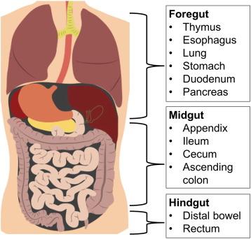 neuroendocrine cancer of the brain)