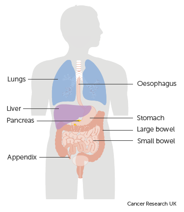 neuroendocrine cancer of the pancreas and liver
