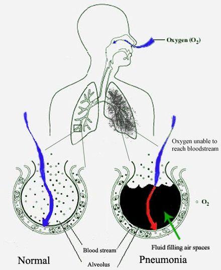 metalele grele din organism cancer mamar mucinos