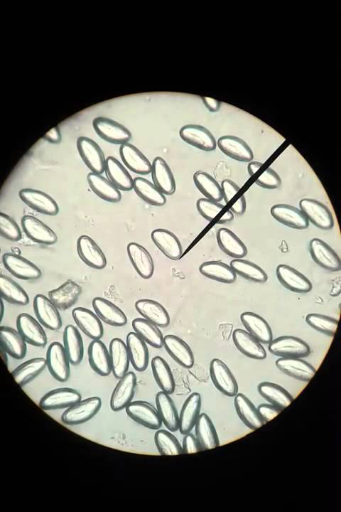 Treatment of pinworms in adults, how to treat and cure.