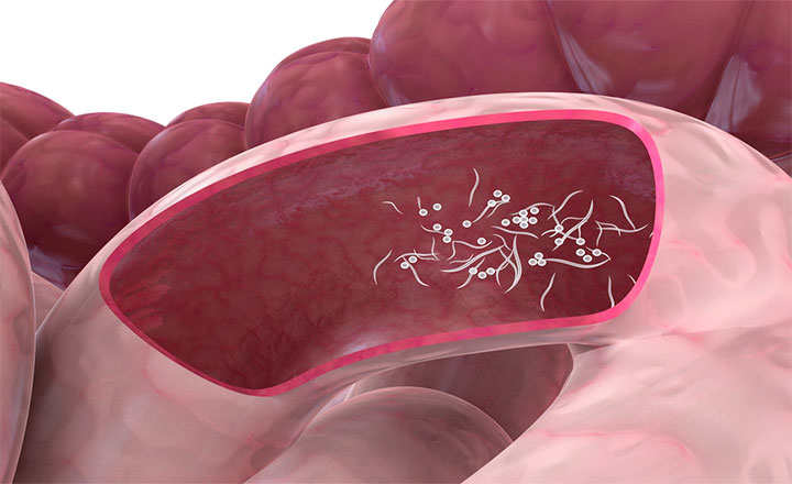 prostate cancer cerebral metastases papillomavirus symptome femme