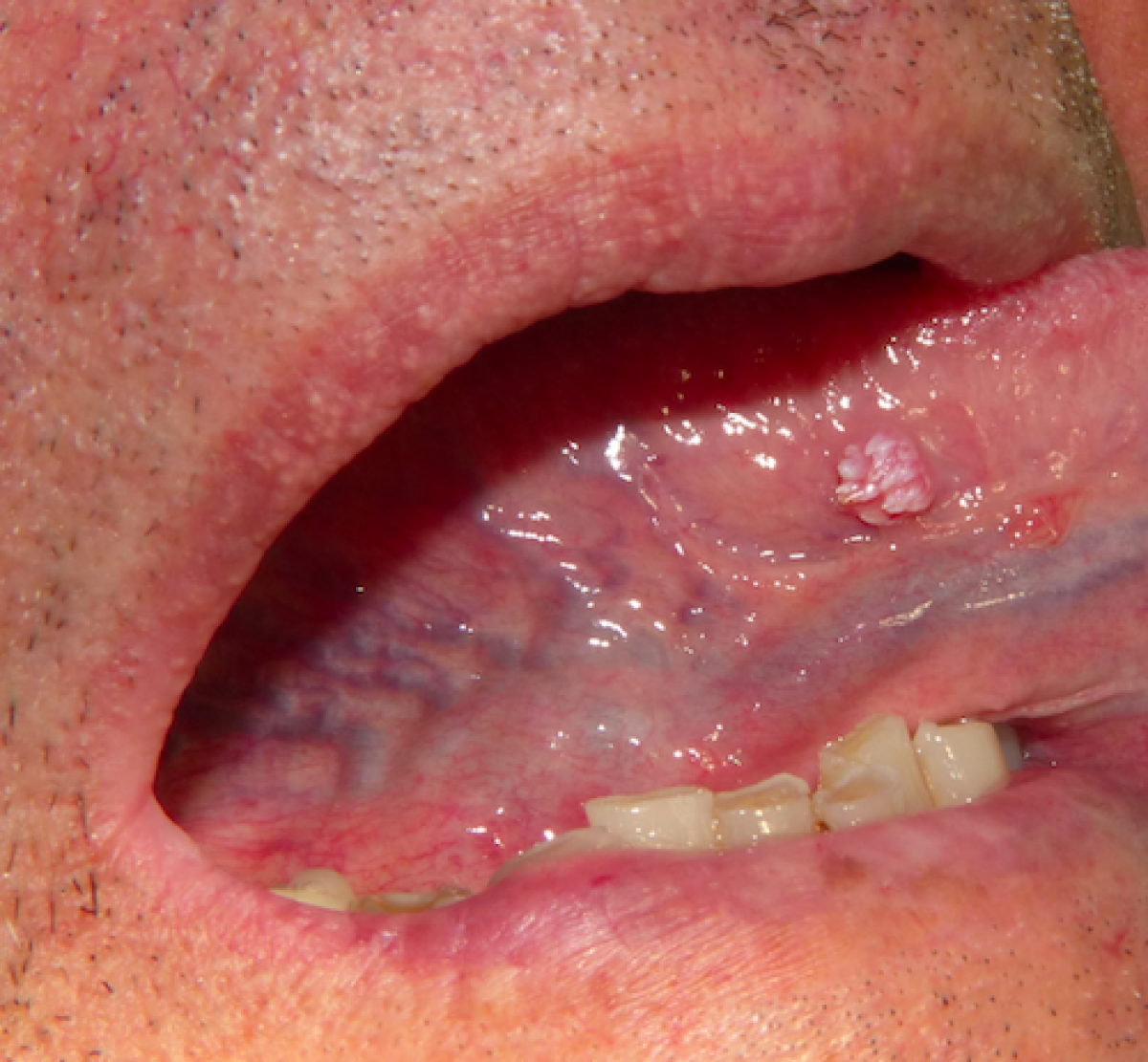 papillary lesion under tongue)