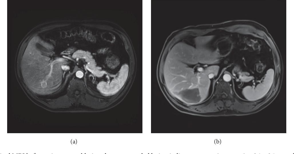 papillary thyroid cancer liver metastases