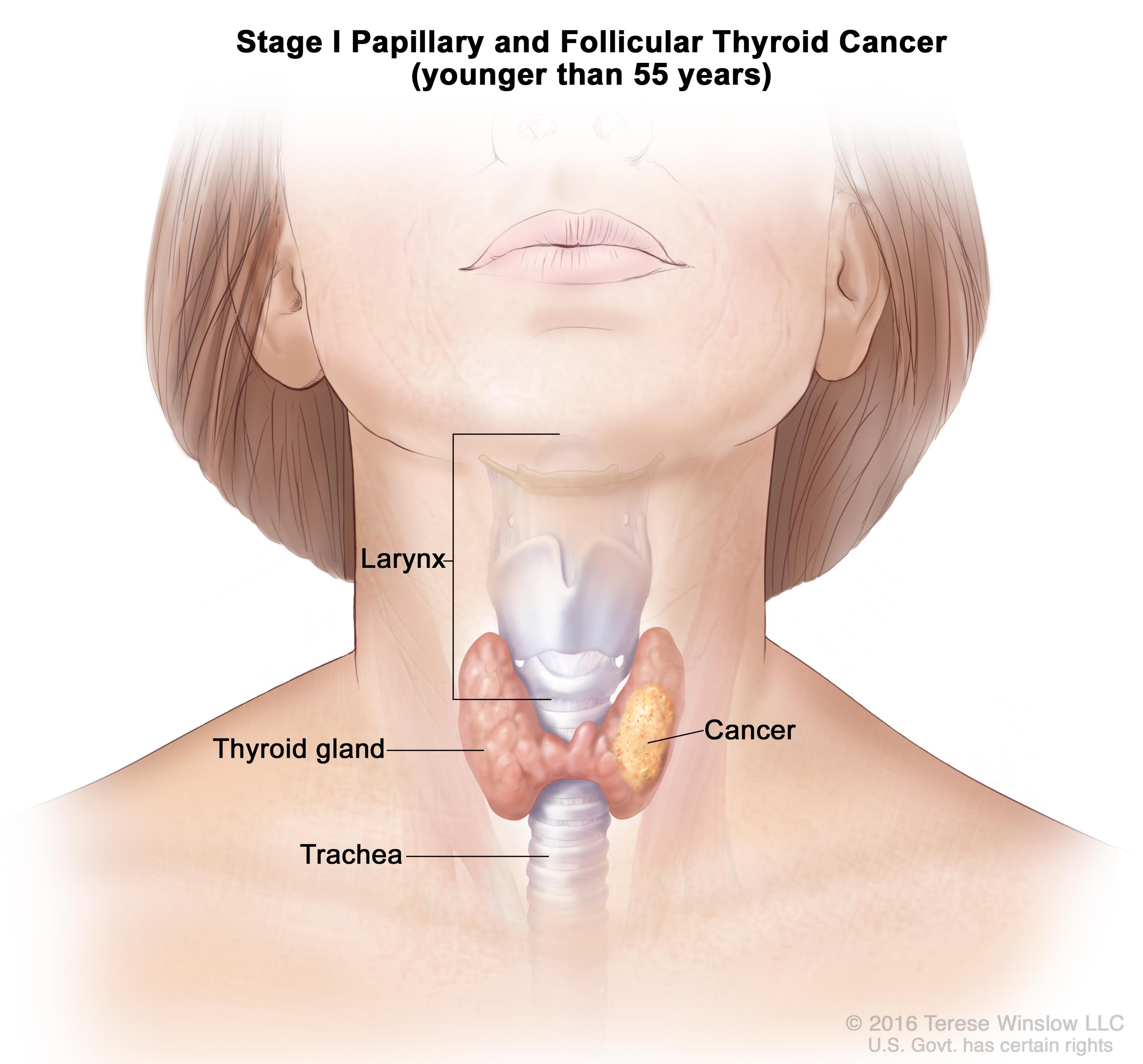 papillary thyroid cancer vocal cords)