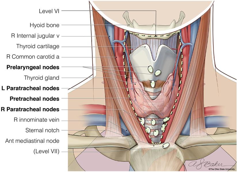 papillary thyroid carcinoma jugular