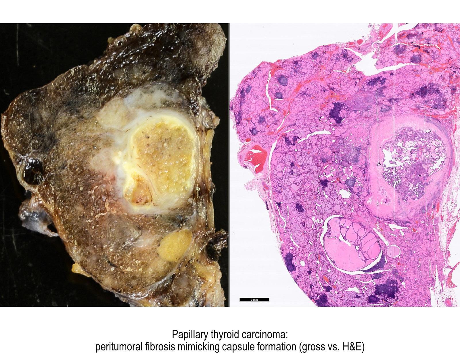 papillary thyroid carcinoma solid variant pathology)