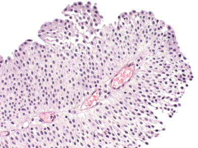 papillary urothelial neoplasm low malignant potential)