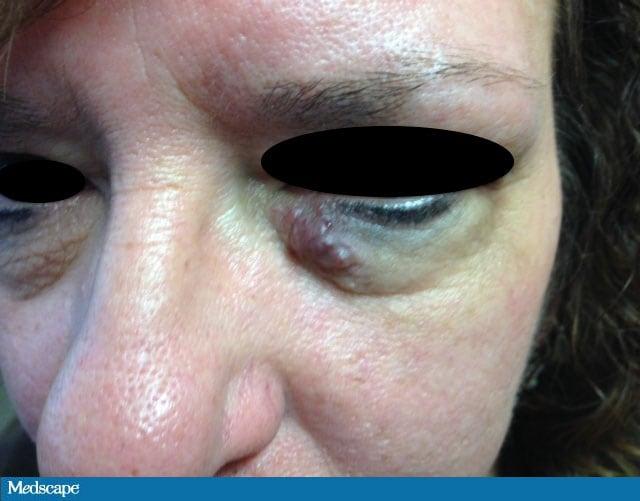 papilloma of right eyelid)