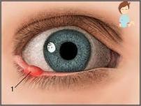 papilloma palpebrale cause imagenes oxiuros ano