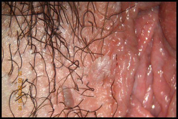 papilloma virus genitali sintomi