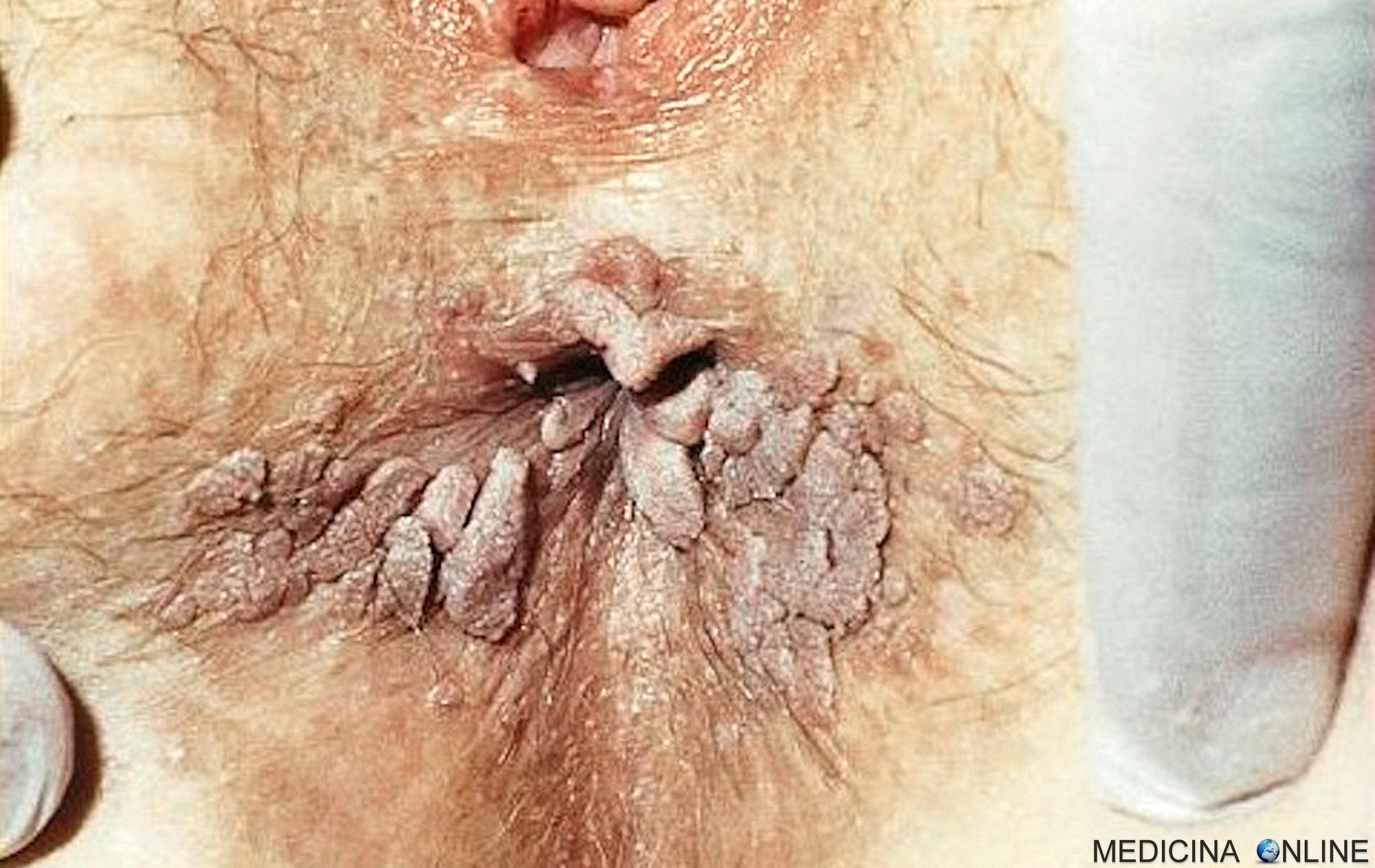 papilloma virus periodo incubazione cancer figado urina escura