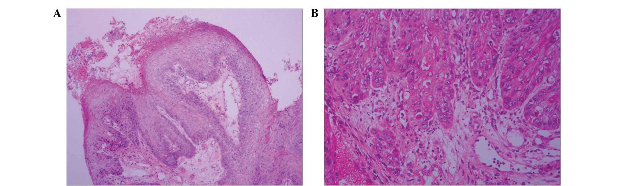 papilloma vs papillary carcinoma)