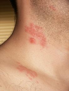 papillomavirus traduction en arabe)