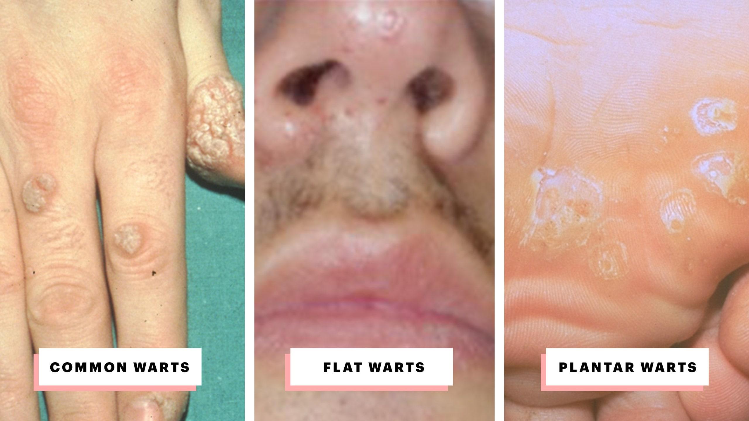 papillomavirus warts treatment)